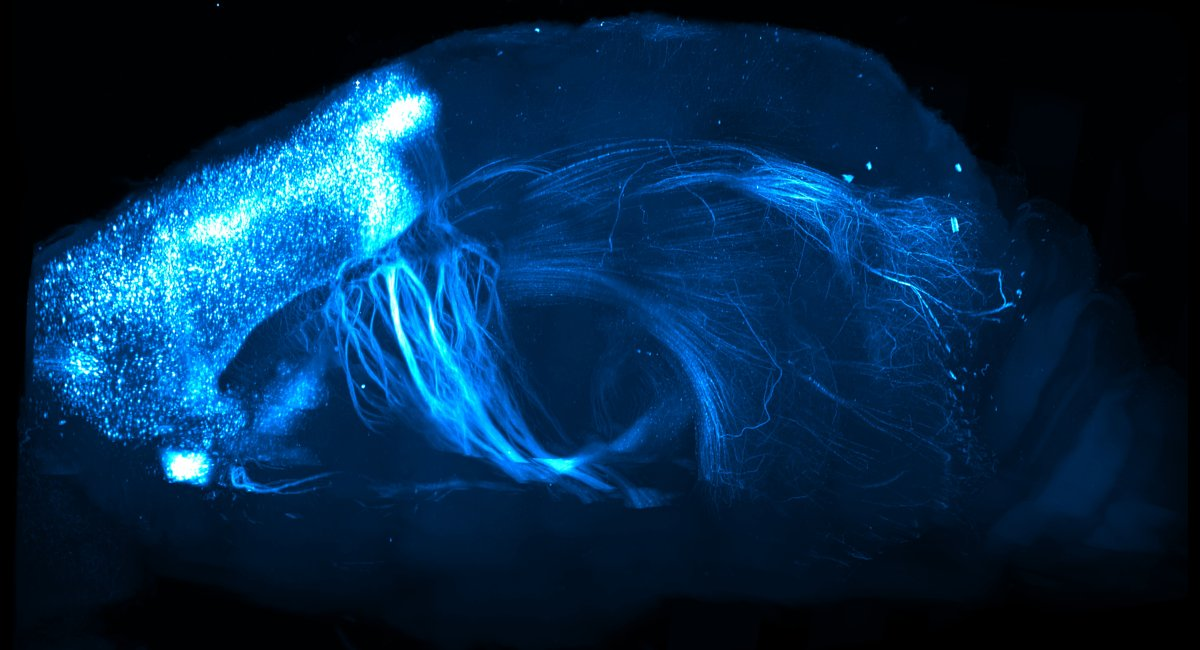 Rapid high-resolution mapping of projections across the entire brain.